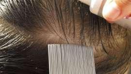 El piojo, como huésped desagradable de la cabeza, es un parásito que toca muy de cerca al profesional de la peluquería. A veces, indirectamente y, desgraciadamente, a veces de forma muy directa