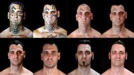 Bryon Widner, un norteamericano ex líder de un grupo de skinheads, se ha sometido a más de 25 operaciones quirúrgicas durante 16 meses para borrar los tatuajes que le unían a su pasado criminal, según publica el Daily Mail