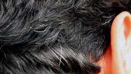 A medida que vamos envejeciendo, las canas van apareciendo en nuestro cabello como muestra del paso de tiempo. Son un síntoma de madurez que, sin embargo, fastidia a muchos por razones estéticas obvias. Pero, ¿por qué aparecen, y a veces tan pronto?
