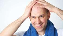 Podemos definir la alopecia como un cese o deficiencia de la regeneración del cabello. Hasta ahora se había actuado sobre el efecto. El presente y el futuro es el tratamiento de la causa
