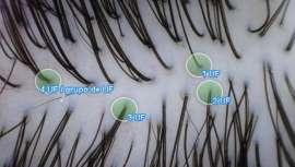El profesional de la peluquería conoce la salud del cabello y el historial capilar de su cliente. Pocos como ellos para aconsejar cuáles pueden ser los mejores sistemas de conservación y cuidado del cabello o, en su defecto, una intervención capilar