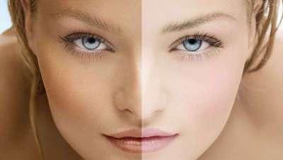 La Arbutina y su uso cosmético como despigmentante de la piel