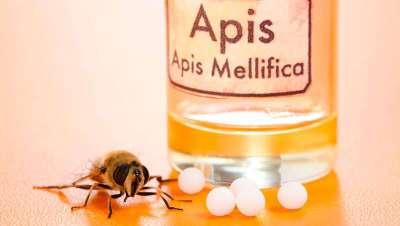 Apitoxina o veneno de abeja: �alternativa natural al b�tox?