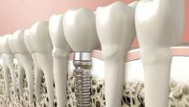 Las prótesis dentales fabricadas con la tecnología Cad-Cam garantizan la mejor estética, rapidez y calidad