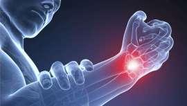 Esta enfermedad provoca dolor crónico y limitación de movimiento de la mano, lo que puede suponer un gran problema para un estilista e incluso obligarle a abandonar la profesión