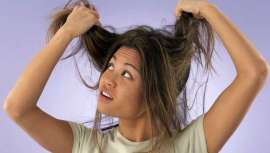 Ante una maraña de cabello imposible de peinar, hablamos del síndrome del cabello impeinable (SCI) o Pili trianguli et canaliculi, en latín. Una anomalía genética, de carácter hereditario, que se desarrolla a partir de los tres meses de edad