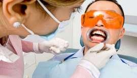 El 53% reconoce que se haría un tratamiento de blanqueamiento dental, si les fuera posible, según un estudio reciente