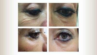 La doctora Virtudes Ruiz, de Virtudest�tica, presenta un tratamiento est�tico sin cirug�a