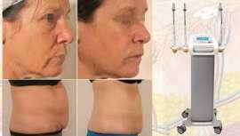 Es un equipo médico-estético avanzado que nos permite tratar las cuatro capas de la piel para un tratamiento completo antienvejecimiento y resultados evidentes en contorno corporal