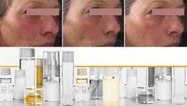 Sederma acaba de presentar Renovage, un ingrediente antiaging de alta tecnología que actúa sobre todos los factores del envejecimiento dérmico: superficie, profundidad y tiempo