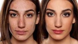 Una gran parte de la utilidad del maquillaje está destinada a fines de belleza, pero hay muchos tipos de maquillaje, como el terapéutico, que van más allá de la estética para hacer sentir mejor a muchas personas