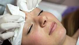 El Instituto Maribel Yébenes presenta este tratamiento avalado por la FDA. Elimina las marcas de acné hasta en un 90% gracias a su combinación de nanofrecuencia microfragmentada más oxigenoterapia inyectada