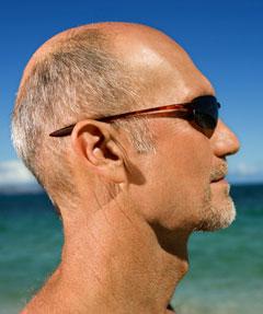 Los calvos, más sensibles a la sobreexposición solar en verano