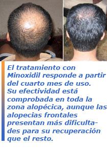 Minoxidil contra la alopecia, es efectivo? - Bekia Salud