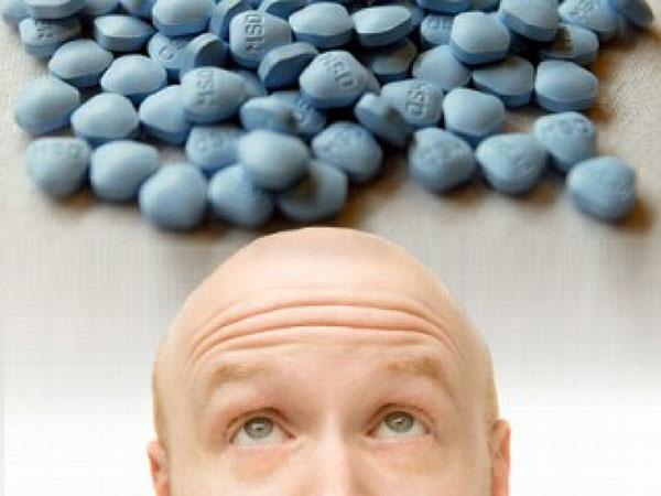 Finasterida y alopecia