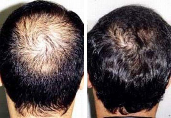 antes y despues de tratamiento con finasterida