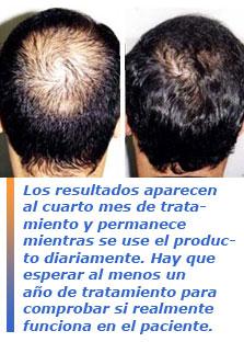 Las máscaras para la densidad de los cabello por medio de la mostaza
