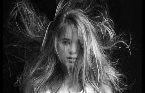>El s�ndrome del cabello impeinable.