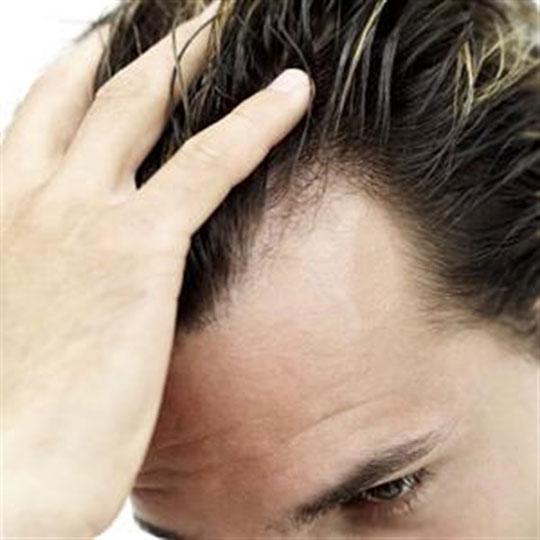 ortiga verde para tratar la caida del cabello